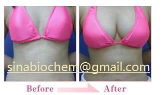Hyaluronic Gel Injection Breast, Buttock Filler/ Syringe